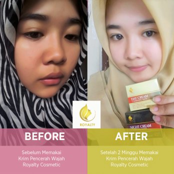 Royalty Day Cream pemutih wajah alami & Night Cream pemutih wajah cepat - 15 gr