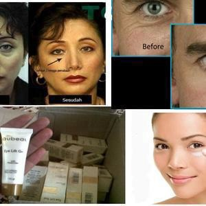 OBAT CREAM KANTUNG MATA EYE LIFT GEL WITH MOISTURIZER ASLI