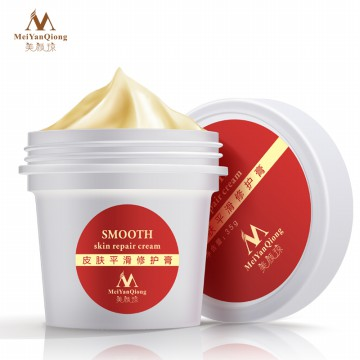 MeiYanQiong Krim Penghilang Bekas Luka Stretch Mark 35g - Red